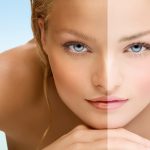 Effective Home Remedies to Remove Sun Tan