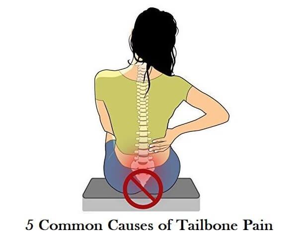causes of tailbone or coccydynia pain