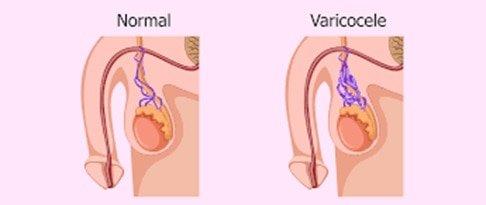 varicocele cause male infertility