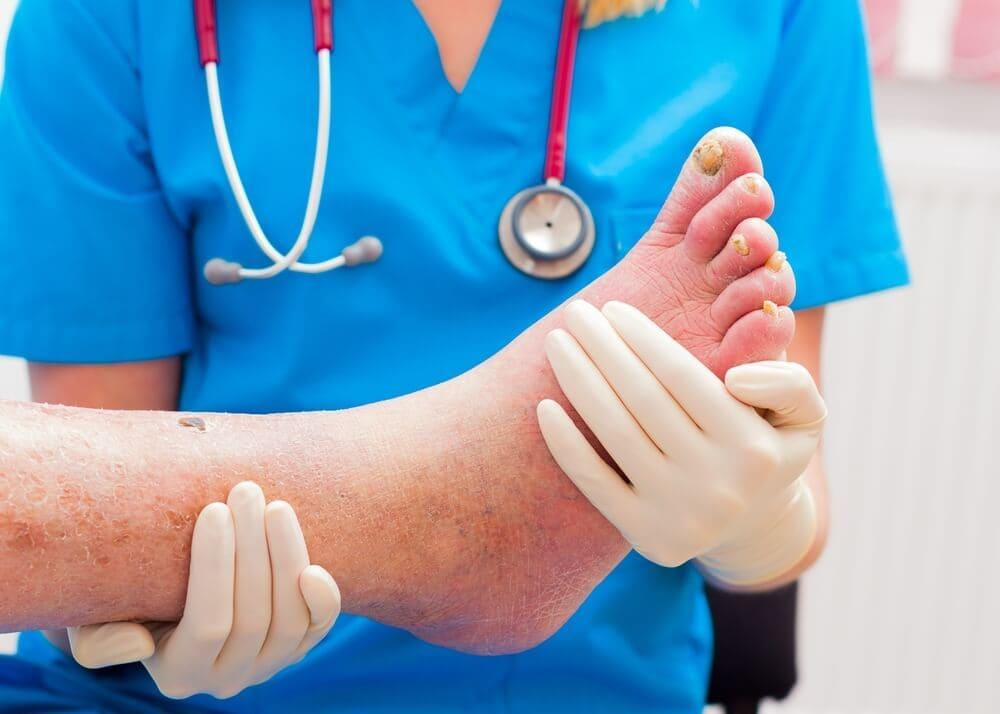 foot treatments near me