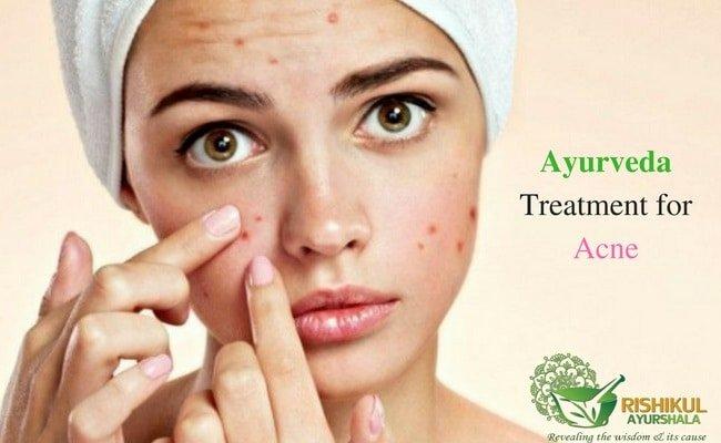 12 ayurvedic beauty tips