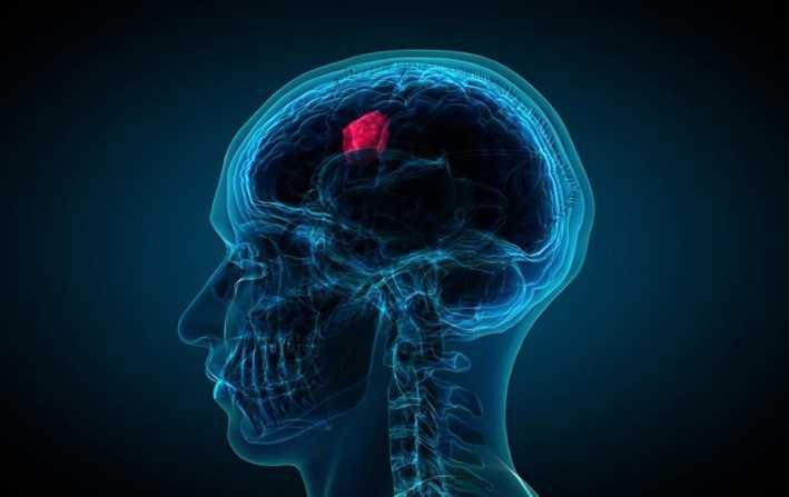 brain tumour treatment price