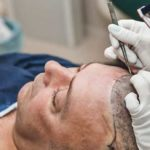 Things to Consider Before Going for Hair Replacement in Syracuse, NY