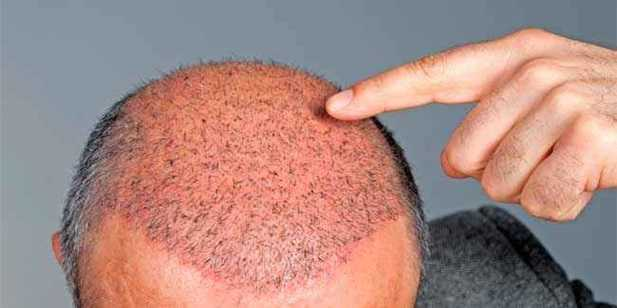 hair replacement surgery procedure in syracuse ny
