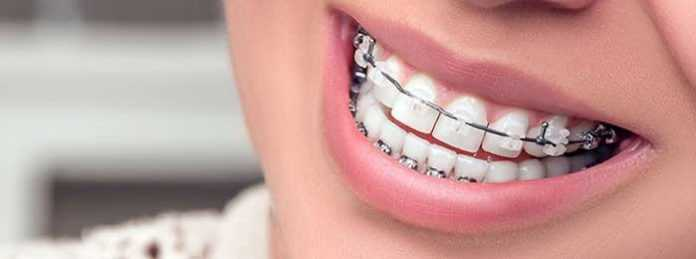 cheap orthodontic braces