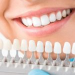 5 Mistakes to Avoid When You're Opting for Teeth Whitening Services