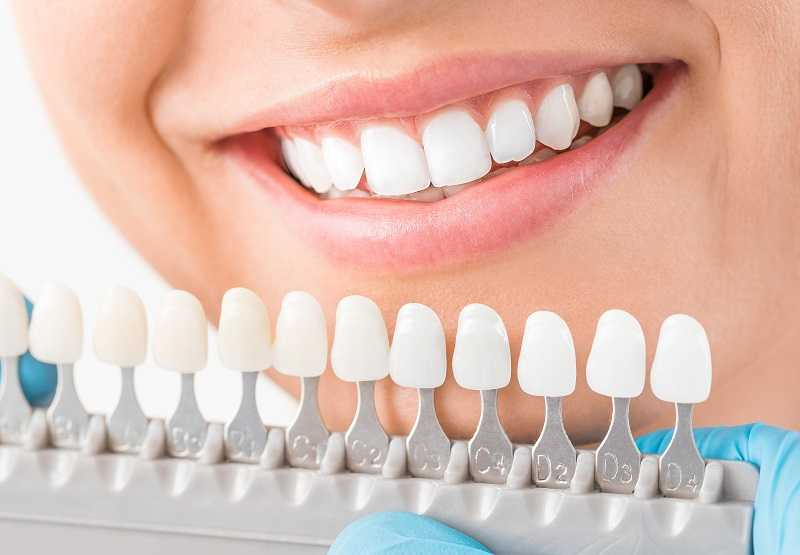 teeth whitening services near me