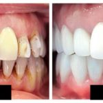 How Can You Change Your Life through Full Mouth Restoration?