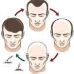 Considering A Hair Transplant? This Is How Much You'll Have To Pay