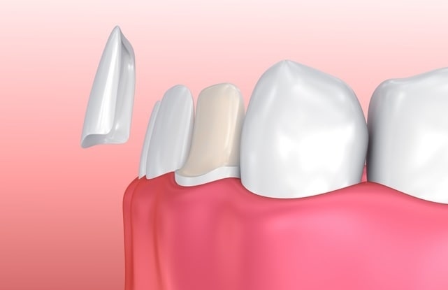 types of dental veneers