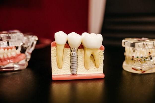 teeth gap filling