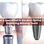 Let's See! What is the Best Option for Replacing Missing Teeth