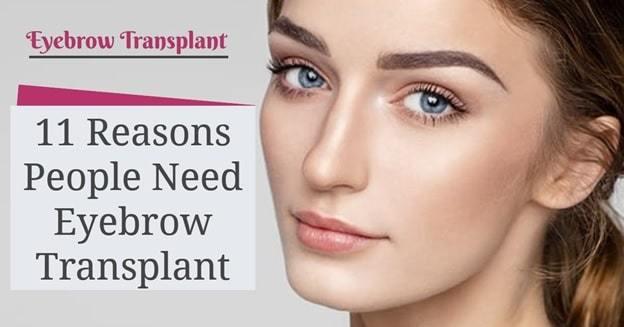 eyebrow transplant restoration