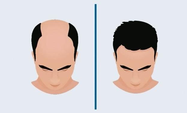 hair cloning treatment