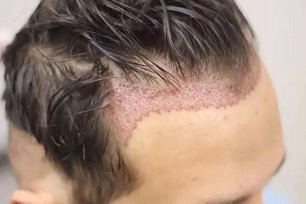 hair grafting process