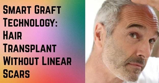 smartgraft hair transplant procedure