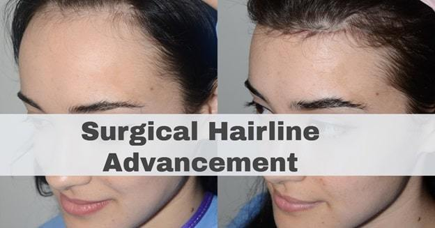 surgical hairline advancement