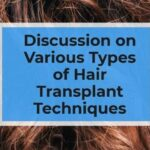 Discussion on Various Types of Hair Transplant Techniques
