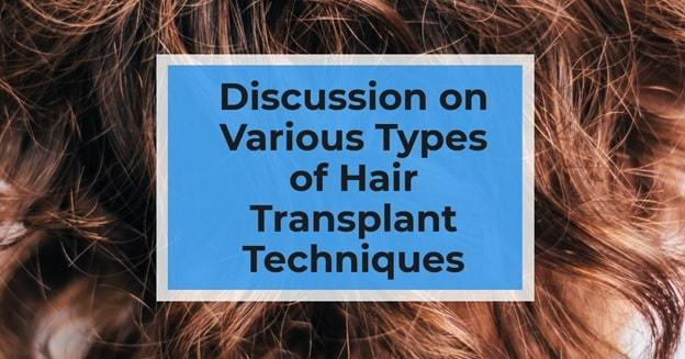 hair transplant discussion