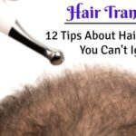 12 Tips About Hair Transplant You Can't Ignore