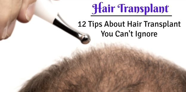 hair transplant near me