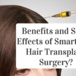Benefits and Side-Effects of Smart PRP Hair Transplant Surgery