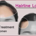 Hairline Lowering Surgery- Perfect Treatment for Women