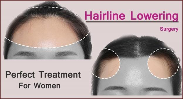 forehead reduction surgery