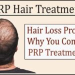 Hair Loss Problem? Why You Consider PRP Treatment