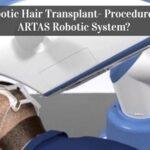 Robotic Hair Transplant- Procedure of ARTAS Robotic System?