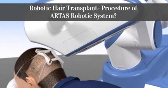 artas robotic hair restoration