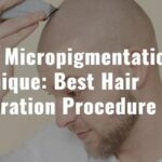 Scalp Micropigmentation Technique: Best Hair Restoration Procedure