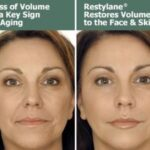 Guide To Know Everything About Face Fillers