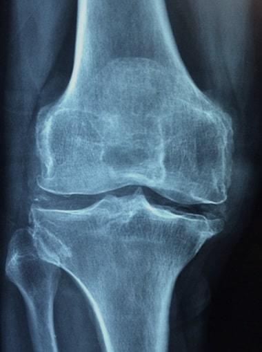 osteoporosis - knee cartilage damage x ray