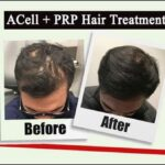 ACell + PRP: Permanent Non-Surgical Solution for Hair Loss
