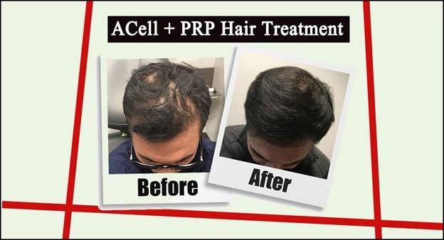 prp acell hair treatment